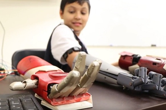 3d-prosthesis